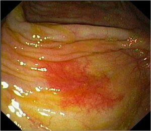 Angiodisplazia colonica