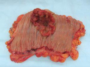 Cancerul colorectal este un neoplasm malign al rectului
