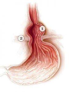 Herniile abdominale: simptome, diagnostic, tratament | bekkolektiv.com