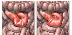 Invaginatie intestinala