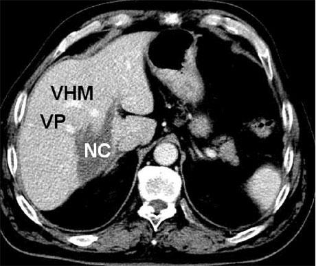 aspect-de-necroza-completa-a-metastazei-la-1-luna-dupa-ablatia-cu-microunde-vhm-vena-supra-hepatica-medie-vp-ram-drept-de-vena-porta-nc-necroza-completa