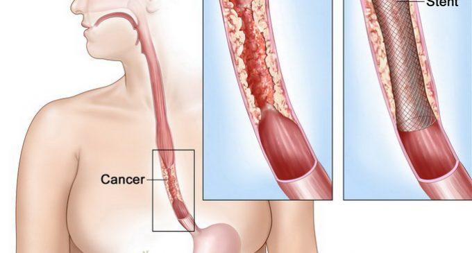 Tumori maligne esofagiene