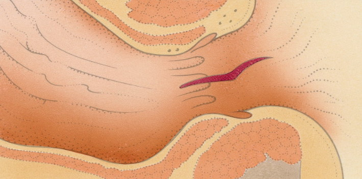 Etiologia fisurilor anale