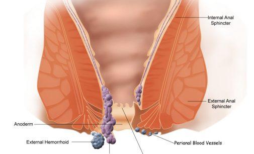 Hemoroizii pe scurt
