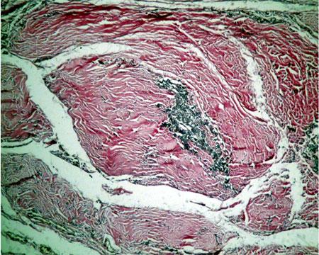 pediculul-vascular-coloratie-van-gieson-elastina