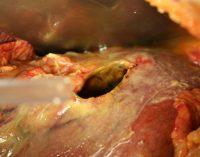 Complicatiile ulcerului gastroduodenal