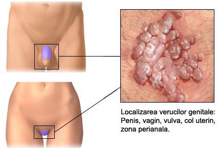rovamicina pentru verucile genitale
